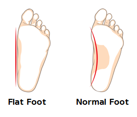 flat foot normal foot