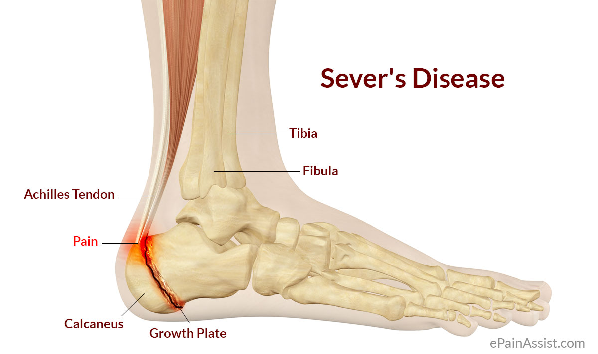Image of foot with sever disease | Featured image for Traction Apophysitis blog.