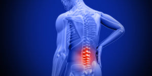 Back Pain Physio | | Featured image for bulged discs blog.