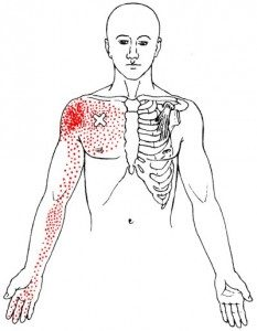 Image of skeleton with red marks on shoulder - Pectoralis muscle pain