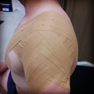 Shoulder taping for sports
