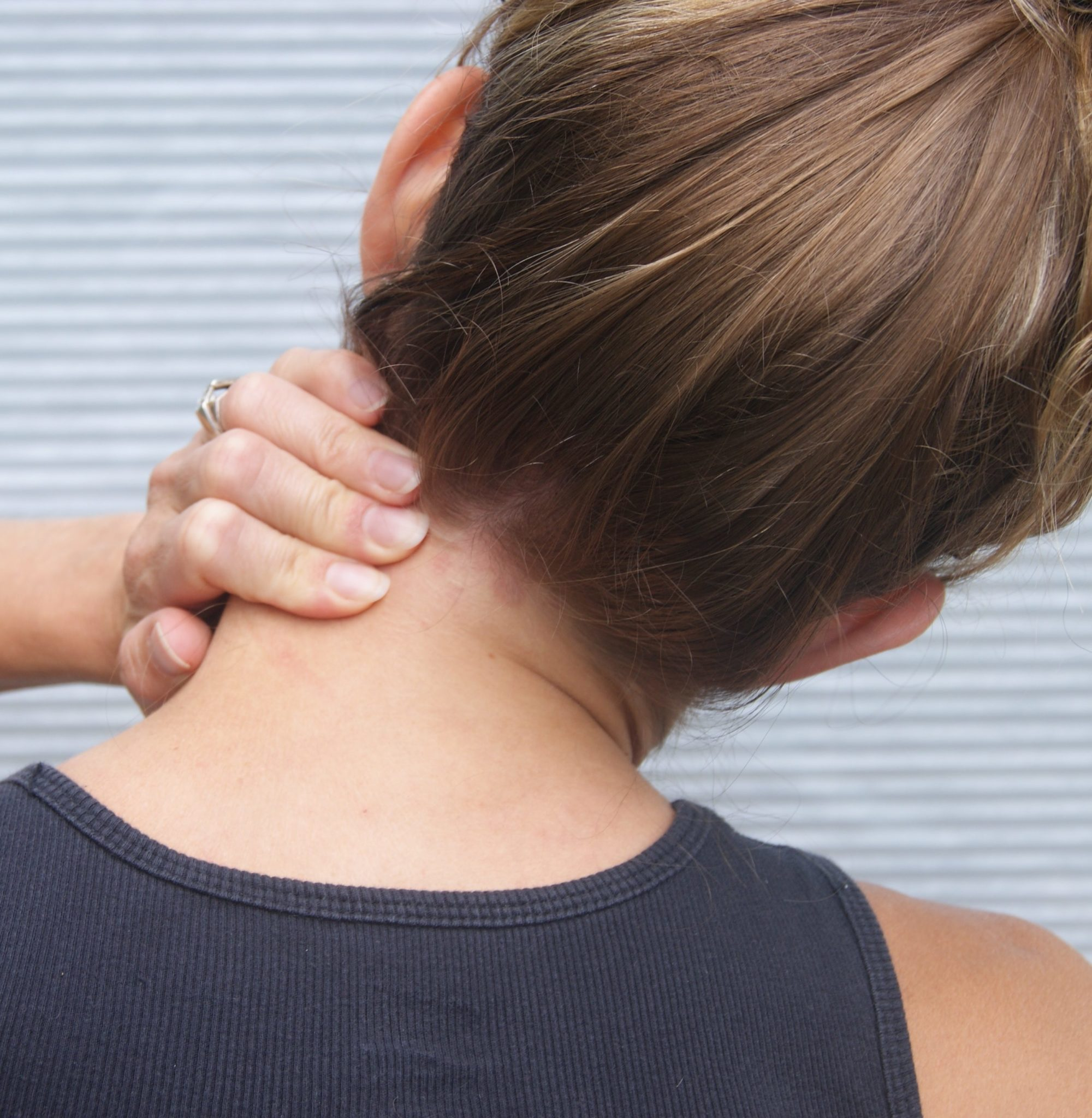 Acute Wry Neck Pivotal Motion Physiotherapy