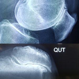 Xray of knees