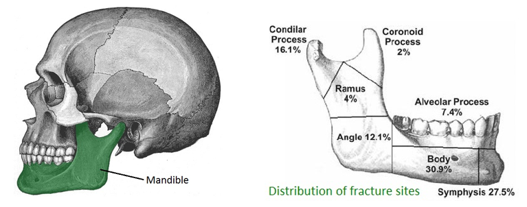 Distribution of jaw fractures