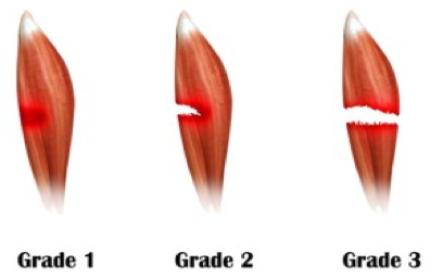 Grading scale of muscle tears