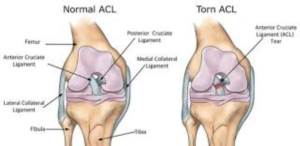 Normal ACL vs Torn ACL