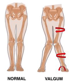 Valgus Posture