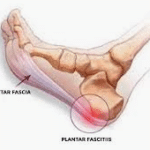 The Ultimate Plantar Fasciitis Treatment Guide