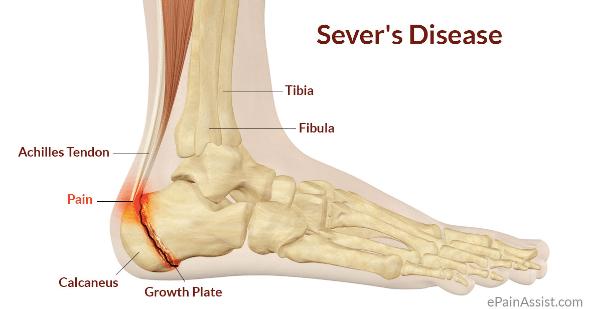 Sever's disease diagram