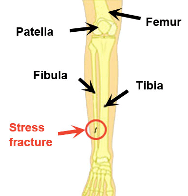 Stress fractures diagram