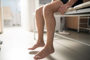 Bare legs of sick male patient sitting on couch in medical office| Featured Image for Identifying Flat Feet and Ankle Pronation | Blog