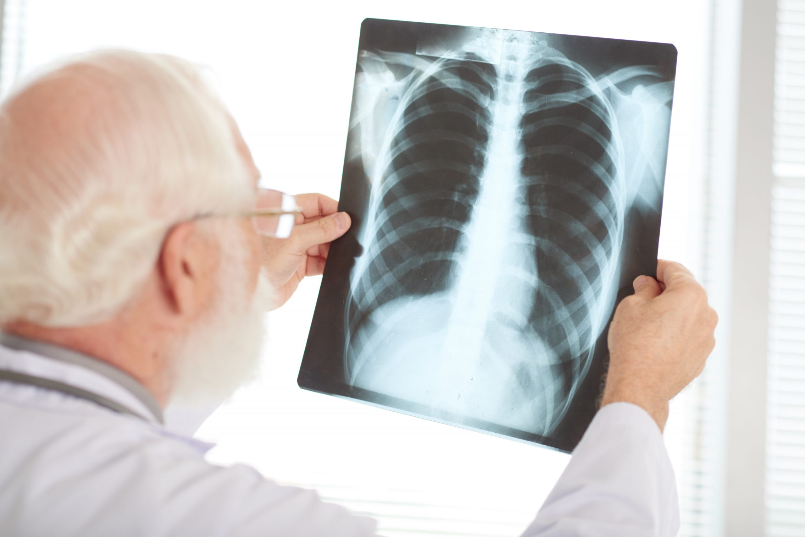 Checking x-ray | Featured Image for Broken Bones That Won't Heal | Blog
