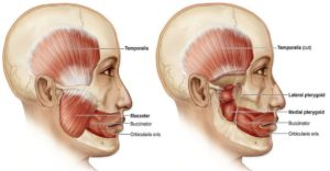 Facial muscles jaw strain